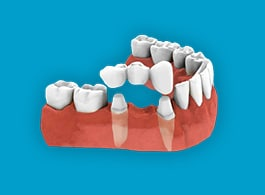 DENTAL CROWN & BRIDGE