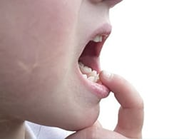 Mobility Of Teeth / Loose Teeth