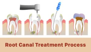 Root-canal-process-Blog-image