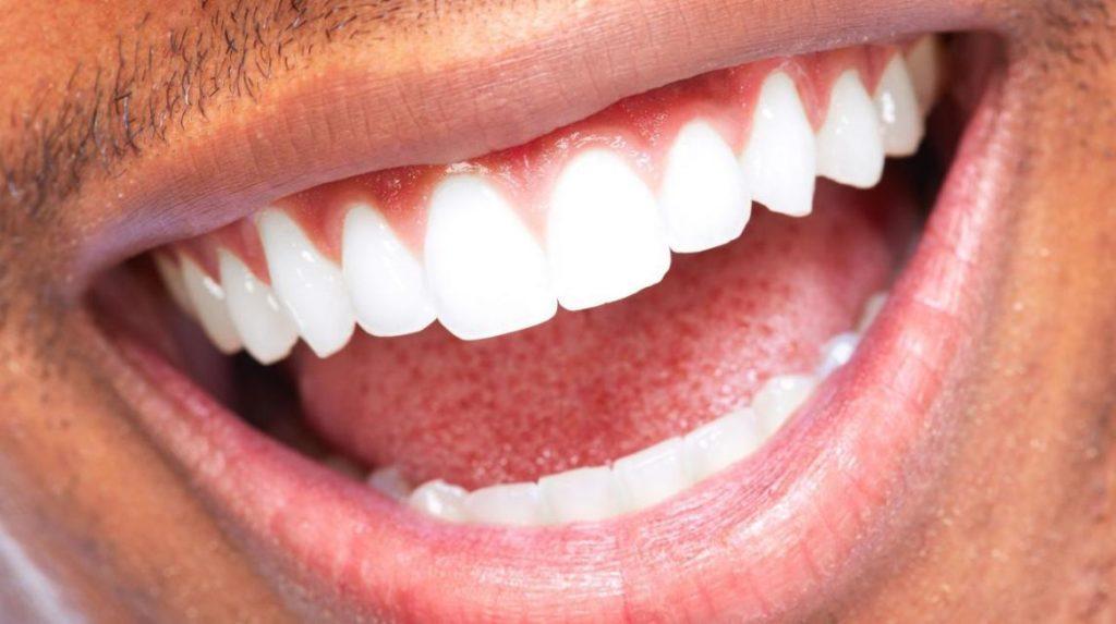 oral symbocis