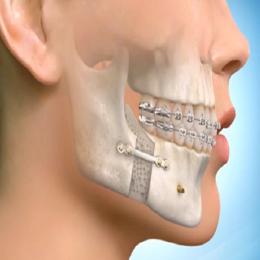 Presurgical-Orthodontics