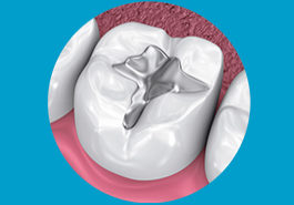 DENTAL FILLINGS / RESTORATION