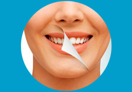 DENTAL SCALING / PROPHYLAXIS / CLEANING